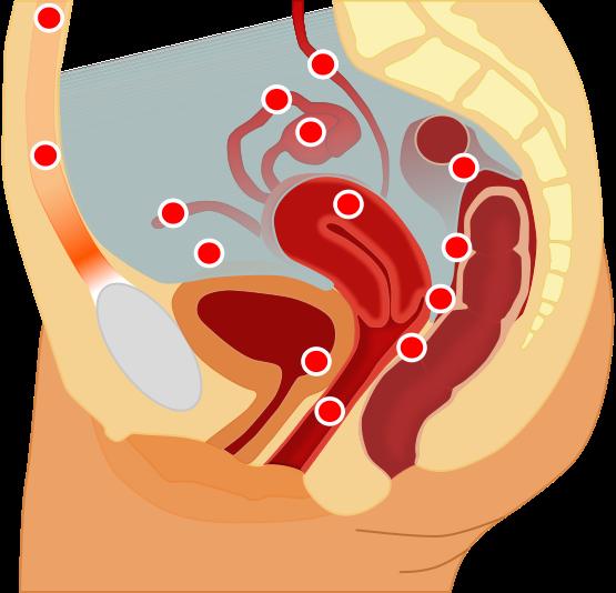 Rot markiert sind mögliche Endometrioselokalisationen